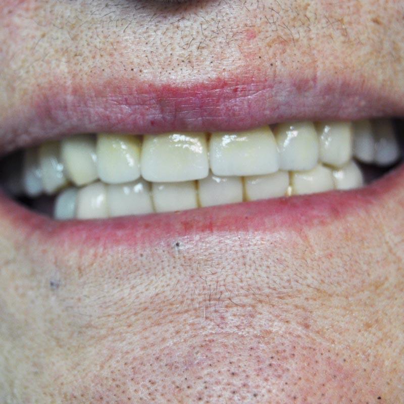 Faccette-dentali-provvisorie-e-faccette-dentali-definitive-studio-dentistico-dottor-gola-2