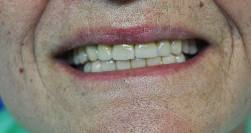 Faccette-dentali-provvisorie-e-faccette-dentali-definitive-studio-dentistico-dottor-gola-23