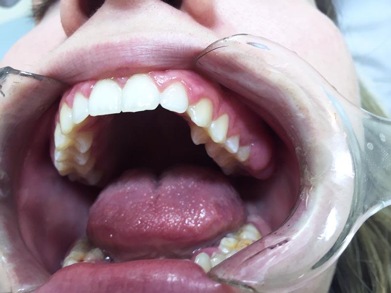 Implantologia-dentale-vantaggi-e-controindicazioni-studio-dentistico-dottor-gola-34