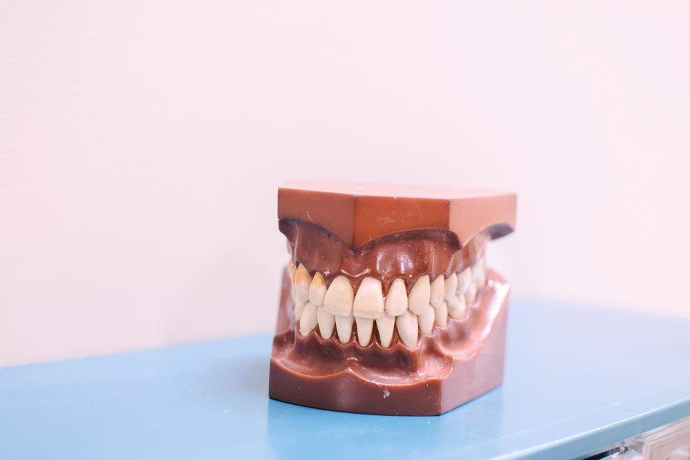 implantologia-dentale-materiali-e-metodi-studio-dentistico-dottor-gola-2