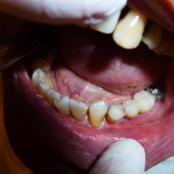 implantologia-dentale-materiali-e-metodi-studio-dentistico-dottor-gola-3