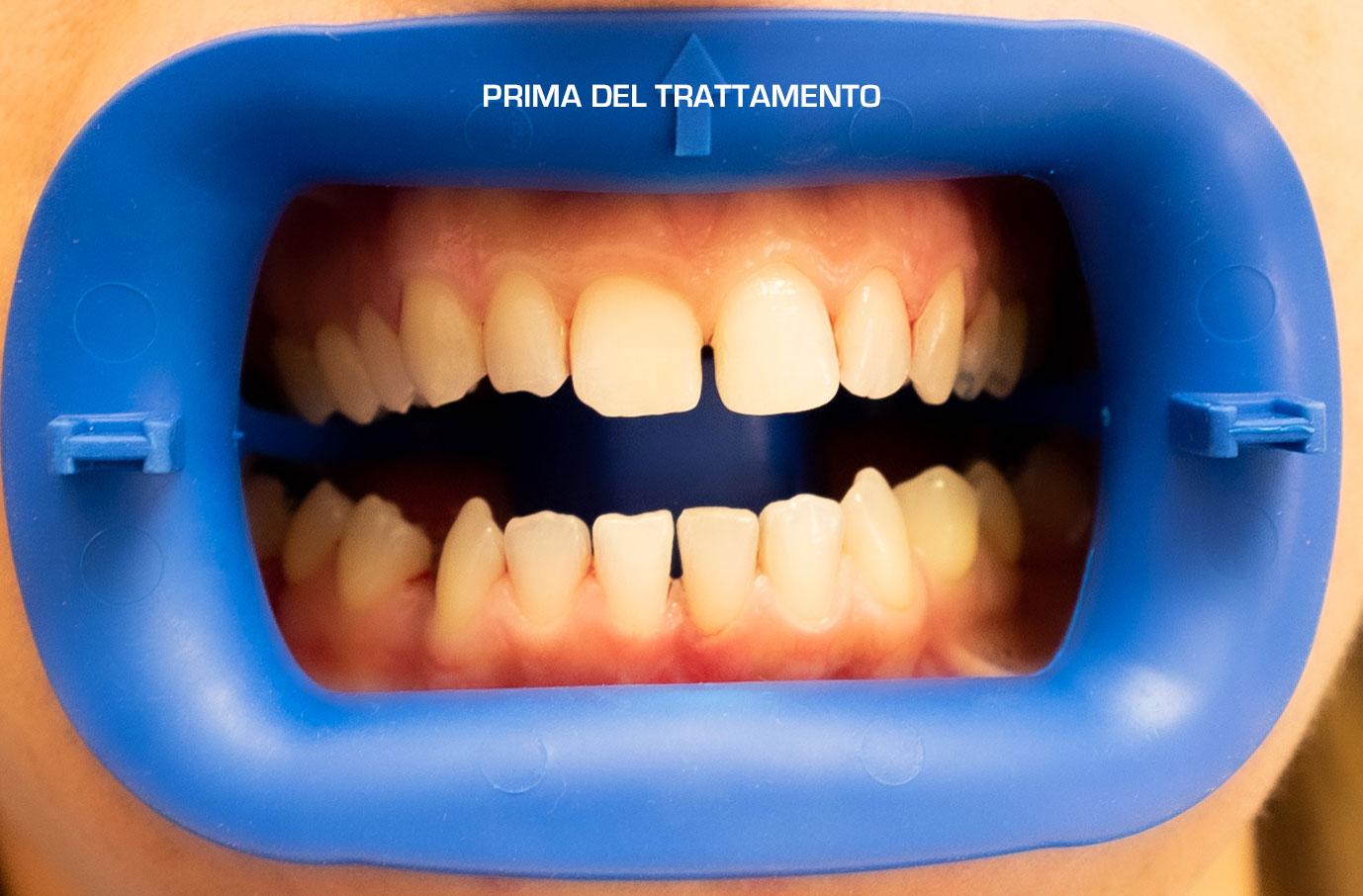 invisalign-raddrizzare-denti-storti-sbiancamento-denti