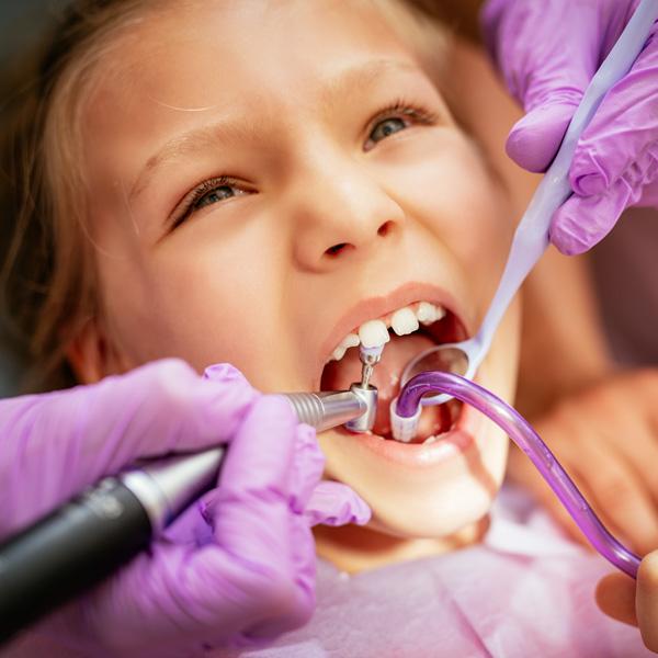 Traumi-denti-da-latte-tipologie-terapia-studio-dentistico-gola-dentista-casteggio-1