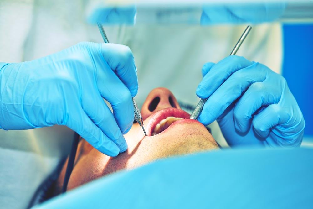 Bruxismo-definizione-cause-rimedi-studio-dentistico-gola-dentista-casteggio-3