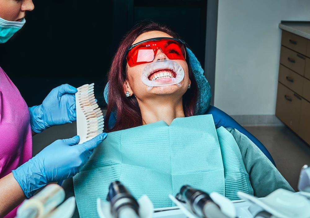 Macchie-sui-denti-attenzione-a-bevandei-studio-dentistico-gola-dentista-casteggio-3