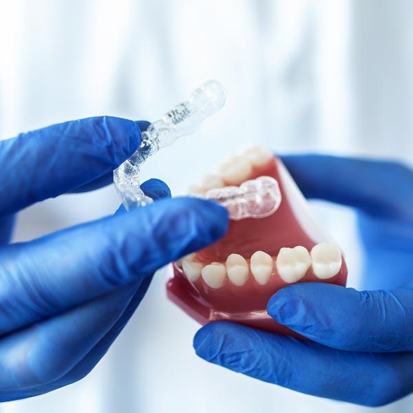 differenza-tra-ortodonzia-estetica-e-ortodonzia-classica-studio-dentistico-dottor-gola-dentista-casteggio-pavia-1